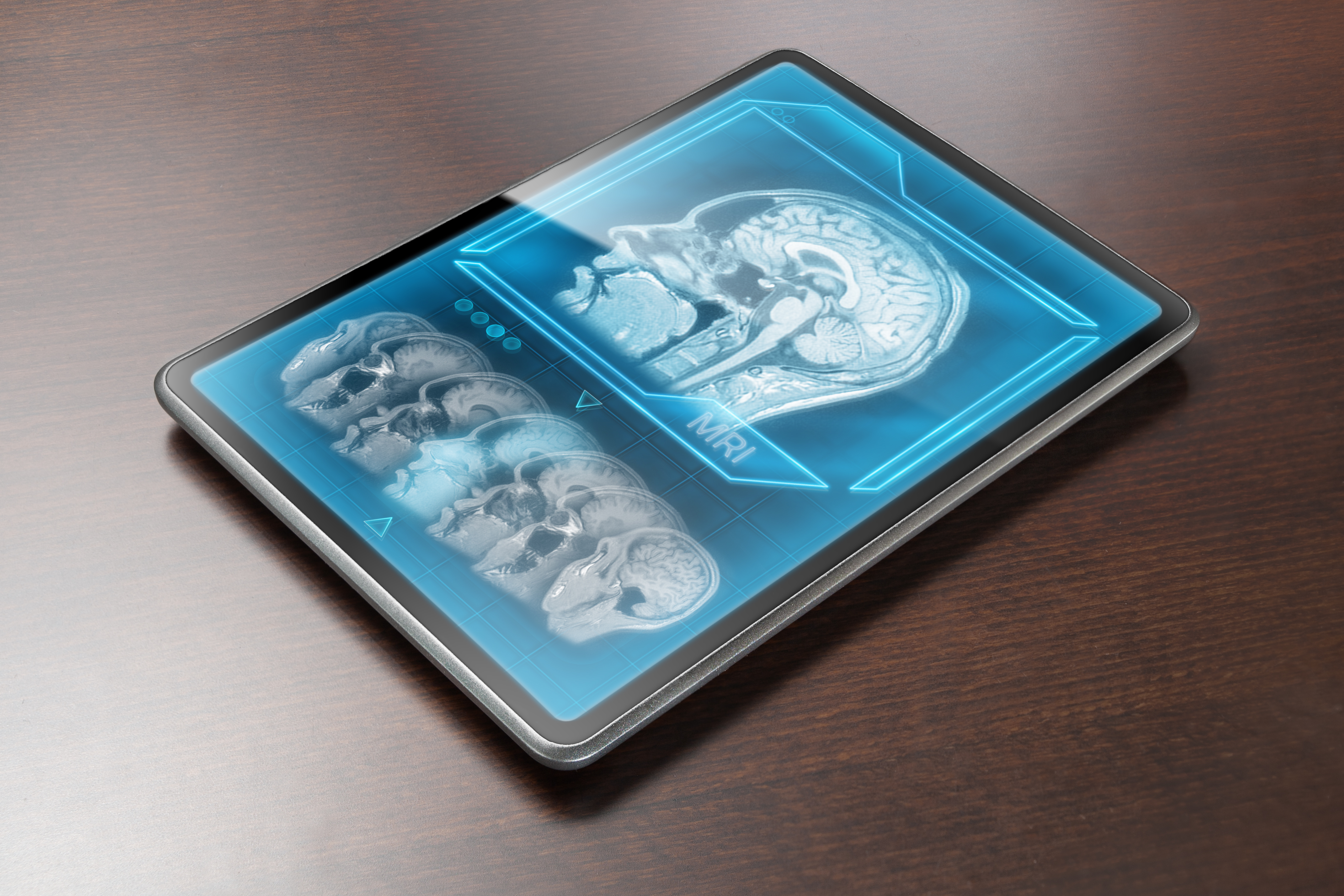 Tablet displaying brain scan on table